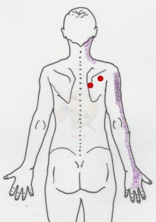 Trigger points podhřebenový sval